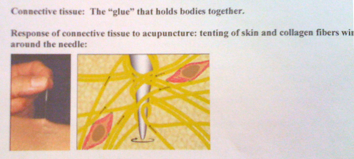 Connective Tissue & Needle Image