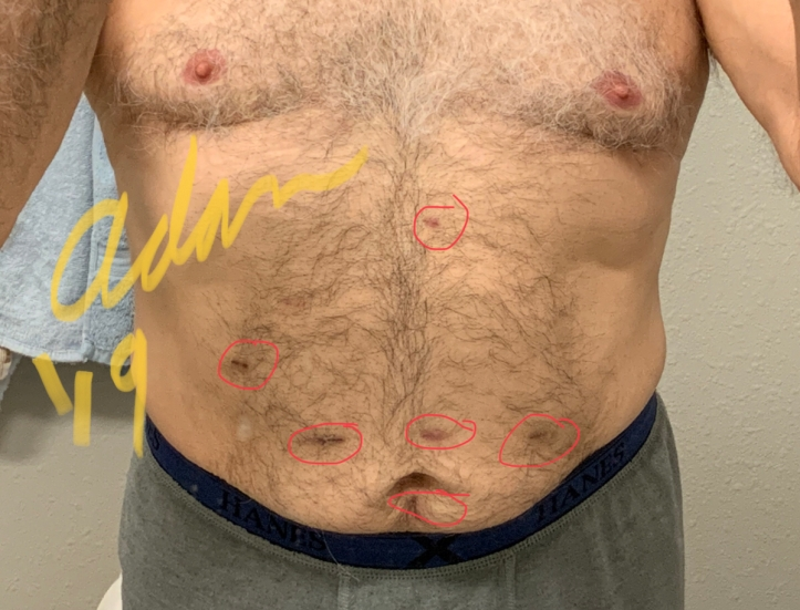 Adan's Laparoscopic scars from 2 surgeries