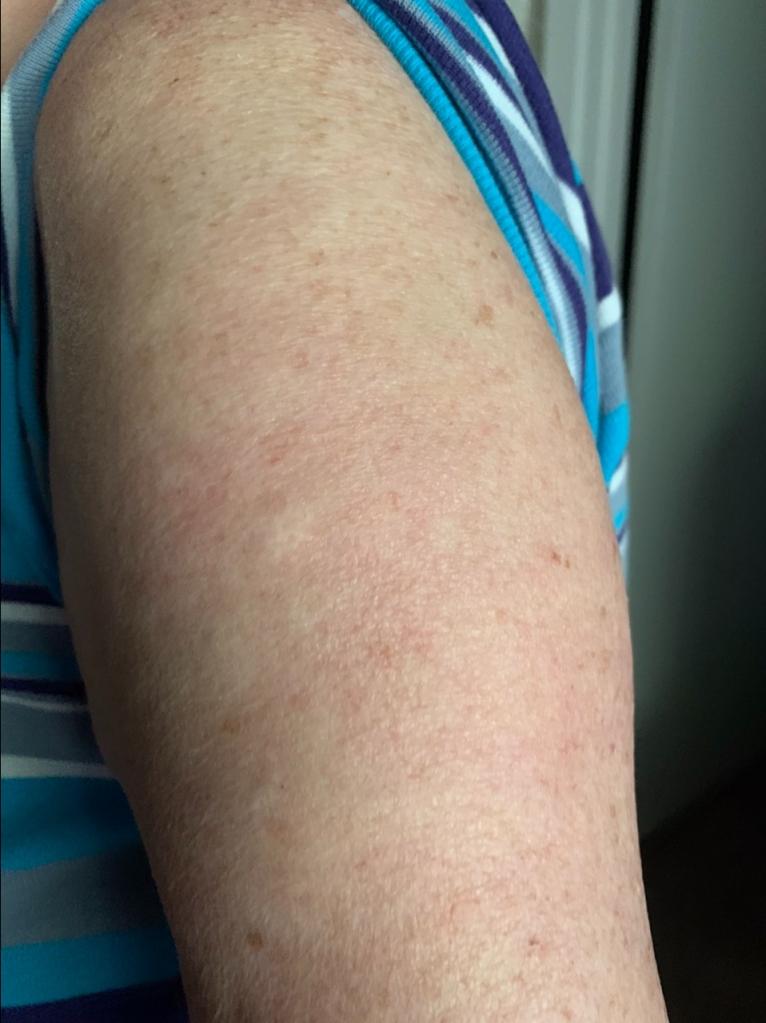 Sheila's Covid arm nearly 100% healed after Booster shot Aug 2021 @Felipe Adan Lerma