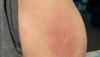 Sheila's Covid arm after Booster shot Aug 2021 @Felipe Adan Lerma